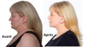 importance lifting cervico facial