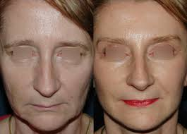 lifting du visage et du cou
